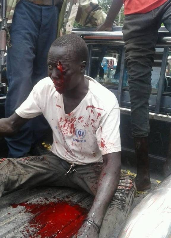 Violent in Gambella is escalating daily